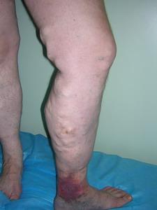 Сильные боли в правом боку под лопаткой со спины