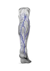 Народные средства лечение варикоза ног у женщин